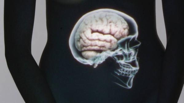 Dans le ventre, un cerveau de la taille de celui d'un chien