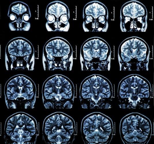 Vivre sans cervelet, c'est possible !