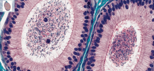 Biologie animale - Spermatogénèse / NIPIB / Itop Education