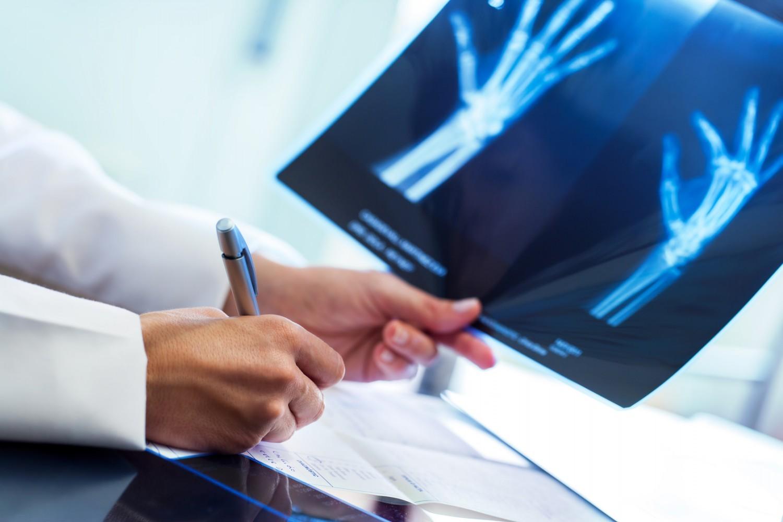 Etudes de médecine : «un étudiant avec une très bonne mémoire a plus de chance de réussir»